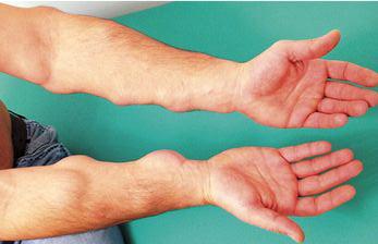 Множественные липомы (липоматоз) на руках