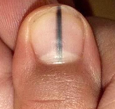 Черная полоса под ногтем фото