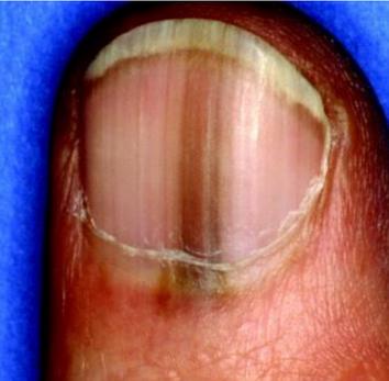 Меланома ногтя фото