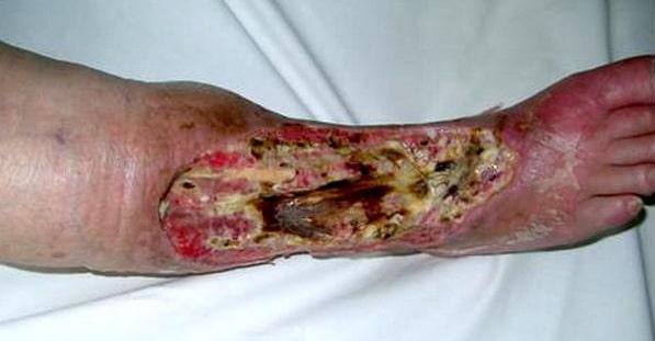 Гнойно-некротическая флегмона голени