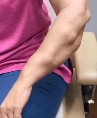 липомы на руке