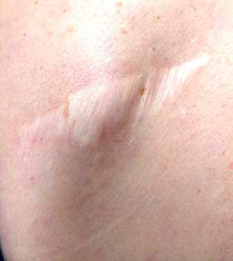 Шрам после удаления липомы